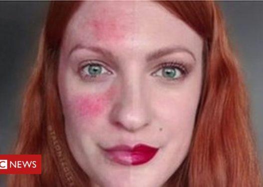 """""""Ke fytyrë të padëshirueshme"""", Instagram i fshin foton modeles së veçantë"""
