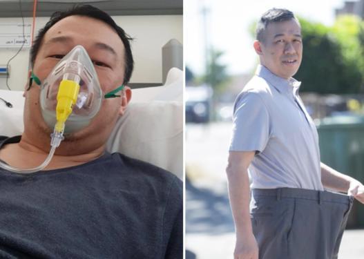 Pacienti humbet 32 kilogramë gjatë trajtimit kundër koronavirusit