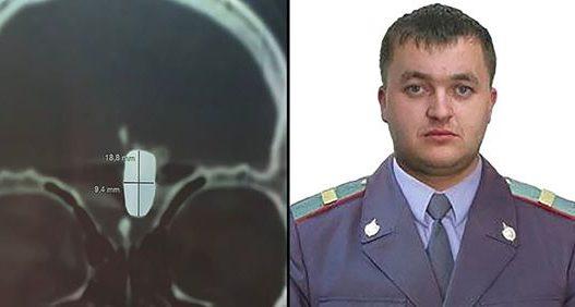 Oficeri i policisë rrëfen si jetoi 10 vite me plumb në tru: Bëja jetë normale!