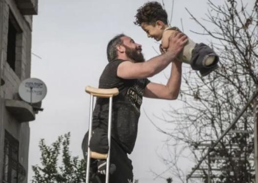"""Mesazh i fortë/ Fotografia e babait dhe djalit pa gjymtyrë shpallet """"FOTOJA E VITIT"""""""